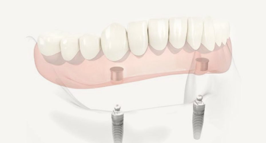 Dental implants Countryside, Il