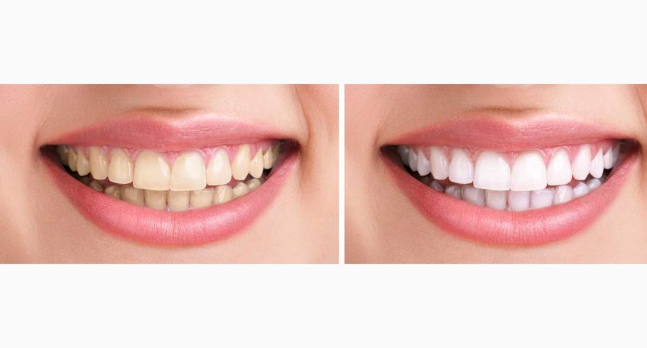 Teeth whitening in Countryside, IL
